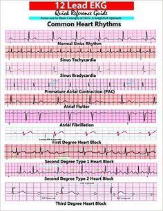12 Lead EKG Pocket Card: APRN World: 9781941004067: Amazon.com: Books