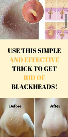 How To Get Rid OF Blackheads With A Simple Trick! #health #beauty #wellness #skincare #blackheads
