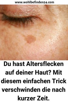 You have age spots on your skin? With this simple . Mit diesem einfachen Trick verschwinden d… You have age spots on your skin? With this simple trick they disappear after a short time. # Beauty tips - Face Care, Body Care, Beauty Skin, Health And Beauty, Goji, Eye Makeup Steps, Younger Looking Skin, Perfect Skin, Health Articles