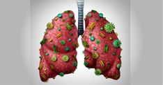 The most imperative capacity of the lungs is to take oxygen from the earth and exchange it to the circulatory system. They are engaged with various Sweet Potato Juice, Lung Detox, Cucumber Detox Water, Smoking Causes, Mental Health And Wellbeing, Juicing For Health, Iftar, Plant Based Diet, Corona