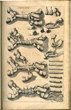 Johannes Scultetus. χειροπλοθεκε [Cheiroplotheke]. Armamentarium chirurgicum... 1655 (https://www.pinterest.com/pin/287386019949684157/). Tabula XXIX.
