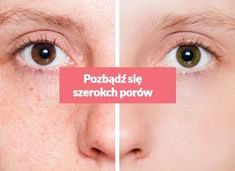 Pozbądź się szerokich porów za pomocą kilku domowych składników! Healthy Habits, Detox, Beauty Hacks, Beauty Tips, Manicure, Hair Beauty, Make Up, Skin Care, Space