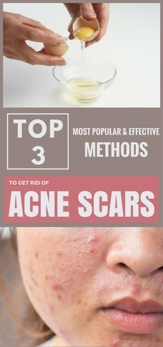 Top 3 Most Popular and Effective Methods to get rid of Acne Scars
