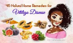 Use natural home remedies for vitiligo disease to make the white spots and patches less visible fast and naturally