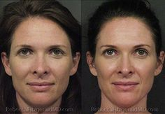 Patient Photos - before and after Sculptra