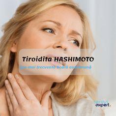 Tiroidita Hashimoto este cea mai frecventă boală autoimună, dar și cea mai frecventă cauză de hipotiroidie. Femeile sunt de 10 ori mai afectate decât bărbații. Thyroid, Healthy, Thyroid Gland, Health