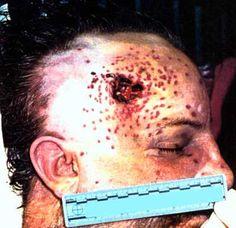 Death autopsy photos scene crime
