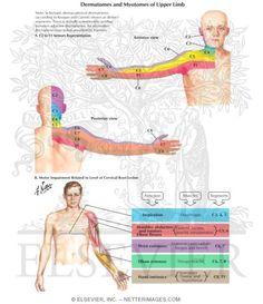 nekhernia c6 c7 symptomen