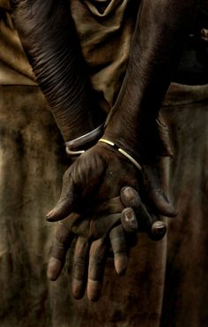 Wow..I want to know the story of these hands.