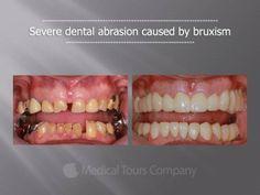 Teeth Grinding, Medical Information, Dental Health, Case Study, Conditioner, Stress, Blog, Oral Health, Blogging