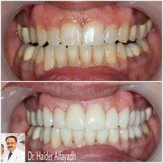 Emax Veneers with Laser Gum Correction by Dr. Haider Alfayadh  #qatar #ksa #kuwait #uae #emirates #dubai #oman #lebanon #germany #jordan #usa #bahrain #bahrainclinic #bahraindental #dental #dentalclinic #specialists #dentist #smile #cosmetic #emax #veneer #implantologist #dentalclinicbahrain #visityourdentist #dentistinbahrain #drhaideralfayadh