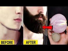 طريقة مثالية لتكثيف اللحية والشارب بسرعة- أسرع الشعر / محلول الشعر في المنزل - YouTube How To Grow Moustache, How To Get Beard, Natural Beard Growth, Best Beard Growth, Mustache Grooming, Beard Grooming, Beard Growing Tips, Dark Patches On Skin, Mustache Growth