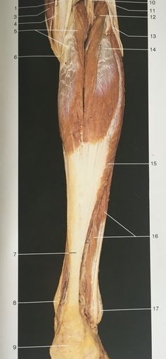 Dorsal aspect muscles of lower leg: longus and brevis Body Anatomy, Human Anatomy, Occupational Therapy, Physical Therapy, Muscular System, Anatomy Poses, Medical Anatomy, Muscle Body, Human Body