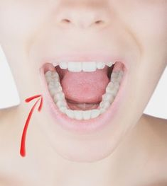 We don't often think of dental problems being related to fibromyalgia, but the medications we take can cause a side effect that may damage our teeth.