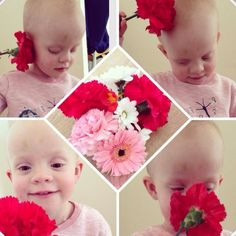 Little girl who's blind due to NF tumours exploring flowers for the first time.