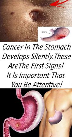 Cancer In The Stomach Develops Silently. These Are The First Signs! It Is Important That You Be Attentive! - Page 4 of 4 - Latest News 360 Healthy Diet Tips, Healthy Beauty, Health And Beauty, Eat Healthy, Healthy Life, Health And Fitness Tips, Health And Wellness, Health Tips, Health Articles