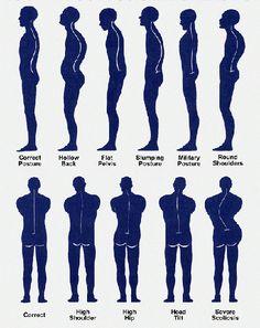 bad postures