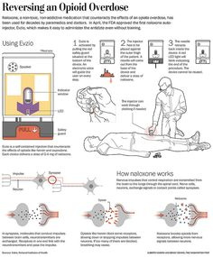 Simple Washington Post explainer graphic describing the new Evzio naloxone auto injection, designed to reverse the effects of opioids overdose. Addiction Therapy, Licensed Practical Nurse, Information Overload, Information Graphics, Pharmacology, Over Dose, Night Life, Medical, School