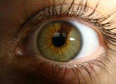 Sectoral Hetrochromia