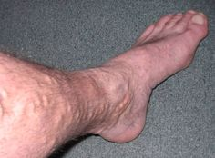 Varicose and Spider Veins explained. The symptoms of varicose veins explained. Descriptions of varicose and spider veins given with pictures. DVT explained with a picture. Varicose Vein Remedy, Varicose Veins Treatment, Natural Home Remedies, Herbal Remedies, Health Remedies, Bistec Relleno, Radiofrequency Ablation, Herbalism, The Cure