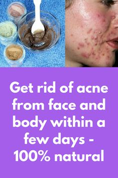 Say good bye to your all acne, scar and pimple using this face pack ! Pimple Scars, Pimples On Face, Acne Scars, Natural Face Pack, Blemish Remover, Pimples Remedies, How To Apply Mascara, Applying Mascara, Acne Scar Removal