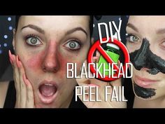 Diy peel off lip stain without glue pinterest easy diy blackhead remover peel off mask removes everything beautybyjosiek youtube solutioingenieria Images