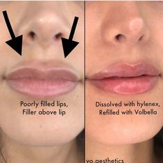 "This client had filler place poorly by a different location. The filler was placed above her lip giving her a ""filler moustache"" Hylenex was used over multiple sessions to dissolve the previous fillers. 1 syringe of Volbella was used to refill her lips 👄 Botox Fillers, Dermal Fillers, Lip Fillers, Lip Injections, Lip Plumper, Relleno Facial, Botox Lips, Facial Aesthetics, Lip Augmentation"