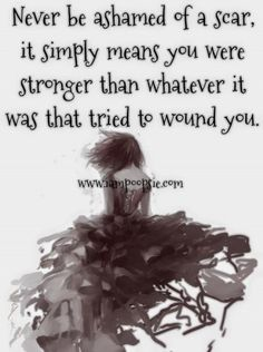 Never be ashamed of a scar, it simply means you were stronger than whatever it was that tried to wound you.