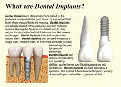 What are Dental Implants? Here is a brief discription about Dental Implants from a Oral and Maxillofacial Surgeon who specializes in Dental Implants. Dental Surgery, Dental Implants, Surgeon Doctor, Homemade Toothpaste, Tooth Powder, Emergency Dentist, Dental Facts, Cosmetic Dentistry, Oral Health