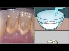 This Mouthwash Removes Plaque From Teeth In 2 Minutes - YouTube