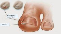Wrastające paznokcie – domowe leczenie | krokdozdrowia.pl