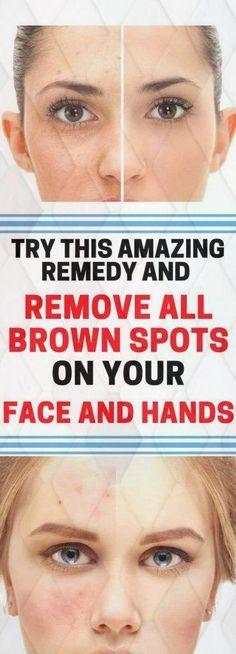 schwarze haut How to get Rid Of Black Spots on Face Black Spots On Face, Brown Spots On Hands, Spots On Legs, Dark Spots, Warts On Hands, Warts On Face, Perfectly Posh, Get Rid Of Warts, Remove Warts