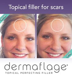 Dermaflage Tutorial to Hide Cystic Acne Scars - YouTube ...