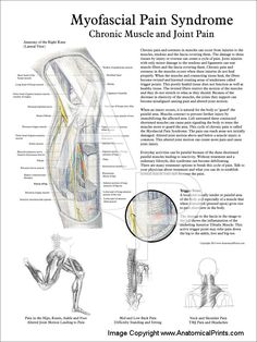 Myofascial Pain Syndrome Poster