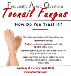 FAQ Friday: What are the options for treating #toenailfungus?
