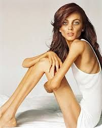 anorexia - Google Search