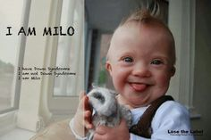 I am Milo. I have Down syndrome. I am not Down syndrome. I am Milo. ♥ Amen.. more people will understand that someday. You are beautiful .