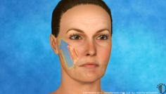 face lift 3d animation