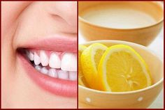 Natural Teeth Whitening Remedies 4 Natural Ways to Remove Stains From Your Teeth At Home – Page 3 – Healthy Living Magazin Teeth Whitening Procedure, Teeth Whitening That Works, Teeth Whitening Remedies, Natural Teeth Whitening, Fitness Inspiration, Baking Soda Teeth, Tooth Sensitivity, Fitness Motivation, Teeth Bleaching