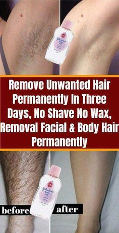 Remove Unwanted Hair Permanently In Three Days, No Shave No Wax, Removal Facial & Body Hair Permanently remedies Unwanted Hair Underarm Hair Removal, Chin Hair Removal, Upper Lip Hair Removal, Electrolysis Hair Removal, Permanent Facial Hair Removal, Remove Unwanted Facial Hair, Unwanted Hair, Best Hair Removal Products, Hair Removal Methods