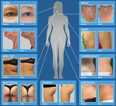 #Exilis #Exilis_Elite easily treats and improves all skin types - lasting and measurable results from head to toe #before_and_after #real #results
