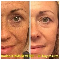 These pics are truly amazing!!! Do you know anyone who would like to REVERSE sun damage? Send them my way! R+F can help!!