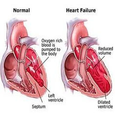 Causes And Diagnosis Of Congestive Heart Failure