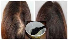 Věděli jste, že je maska na vlasy z běžných kvasnic poměrně jednoduchý recept, jak dodat krásu a lesk i velmi poškozeným vlasům? Home Remedies For Hair, Hair Loss Remedies, Acne Remedies, Natural Remedies, Scalp Problems, Hair Issues, New Hair Growth, Regrow Hair, Hair Loss Treatment