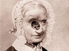 "basal cell carcinoma was called ""rodent cancer"" this photo published in 1867 in one of the first medical textbooks by Dr Charles Hewitt Moore Burns, Basal Cell Carcinoma, Medical Textbooks, Dentist Humor, Human Oddities, Medical Pictures, Medical Symbols, Eyes Problems, Eye Doctor"
