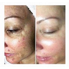 6 weeks worth of treatments using them 3 times a week & at a fraction of the cost of a single salon chemical peel !! Message me eta_blocco@yahoo.com for more details