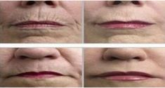 Frota tus arrugas con esta especia y desaparecerán mágicamente – Salud Por Día
