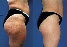 Cellulite be gone w/Endermologie