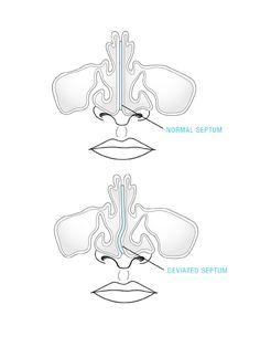 Do you have a deviated septum? #deviatedseptum #cantbreathe #snoring #sinus #charlotte #northcarolina