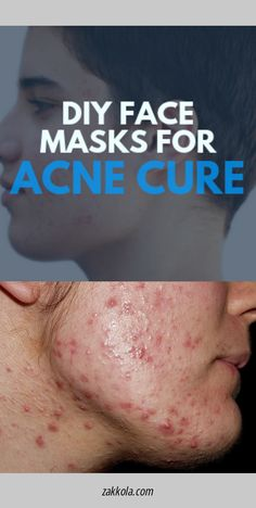 Want to know more about acne.  Just click on the link for more info... Acne Remedies, Diy Face Mask, Acne Treatment, Link, Acne Products, Face Mask Diy